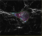 A confocal image showing a breast cancer cell migrating within a tissue-like environment. We are using microfluidics and computational modelling to discover new methods to prevent cancer cell migration and cancer metastasis.
