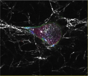 Cancer Cell Motility