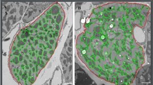 """Mitochondria (segmented in green) in heart cells of diabetic subjects (B) exhibit a different organisation pattern to those in control (""""healthy"""", A) heart cells. We are studying what the effect of this reorganisation is, how it reorganises and how we can control it as a therapeutic strategy."""